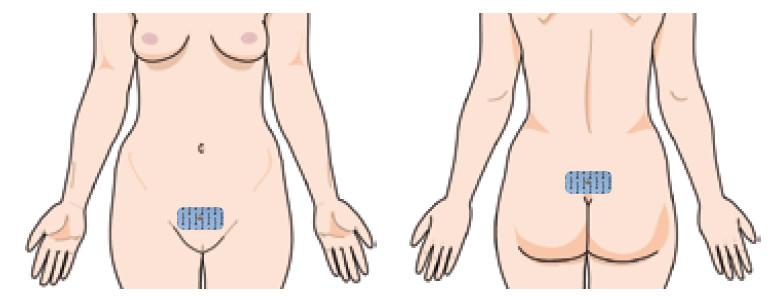 inkontinencia kezelés stimulációval kezelési pontok