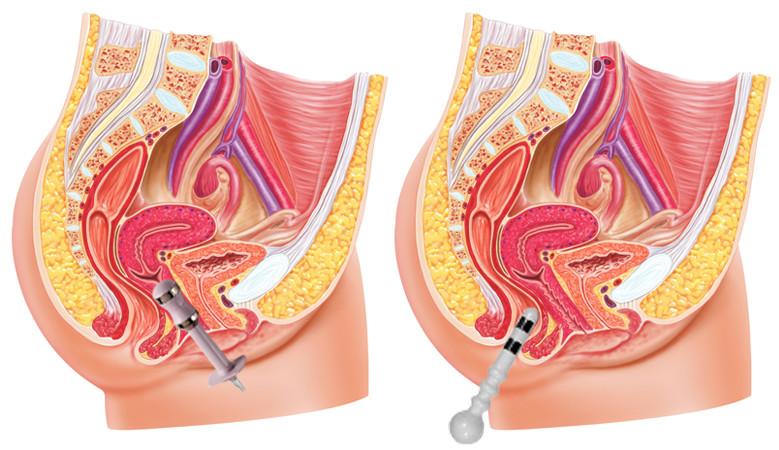 inkontinencia kezelés hüvelyi és végbél szonda segítségével